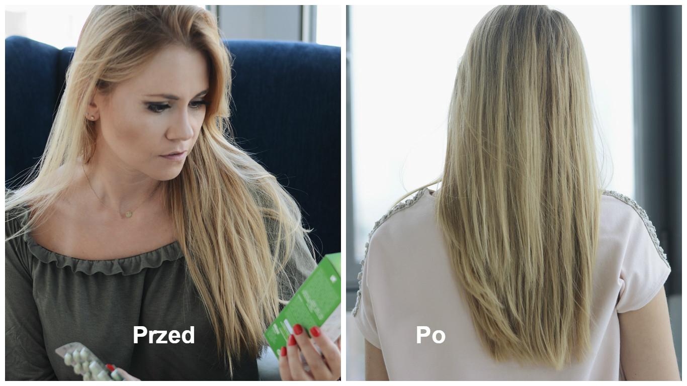 vitapil na wypadające włosy opinie